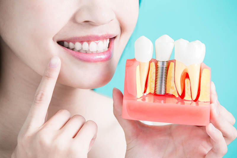 about burbank dental implants
