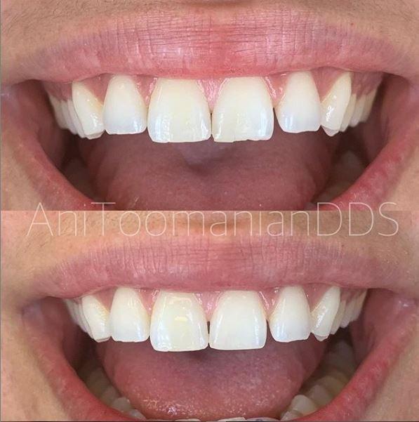 burbank dental group