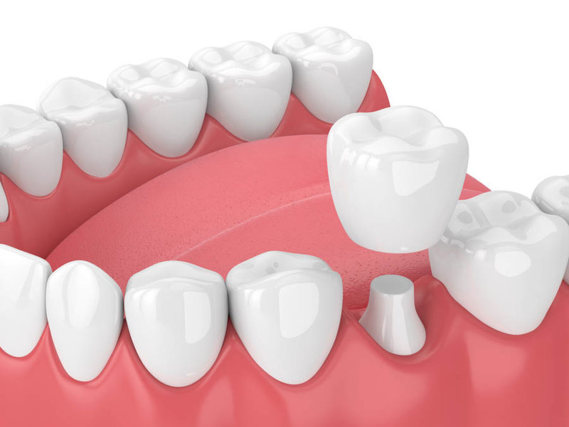 Burbank dental implants