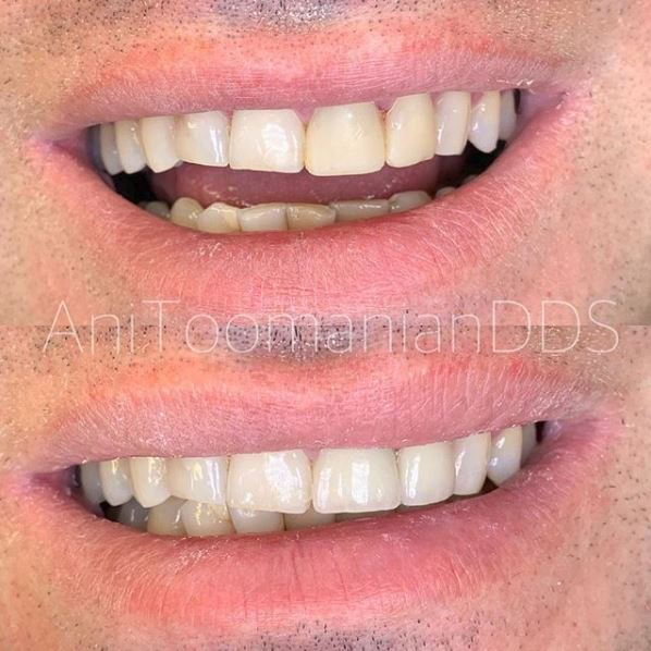 cosmetic dentist in burbank
