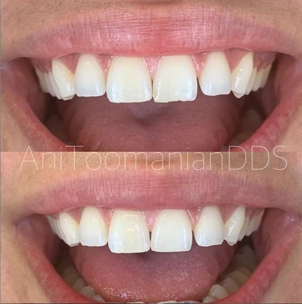 porcelain veneers in Burbank