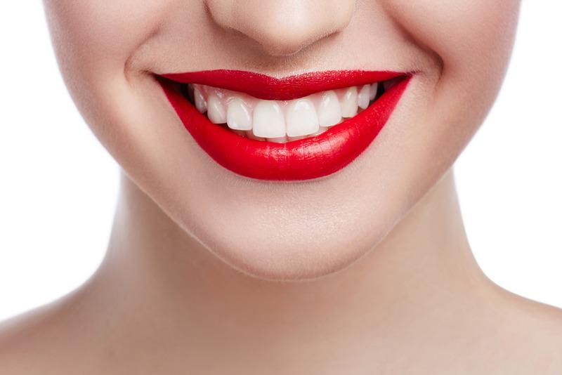 veneer dentist in Burbank