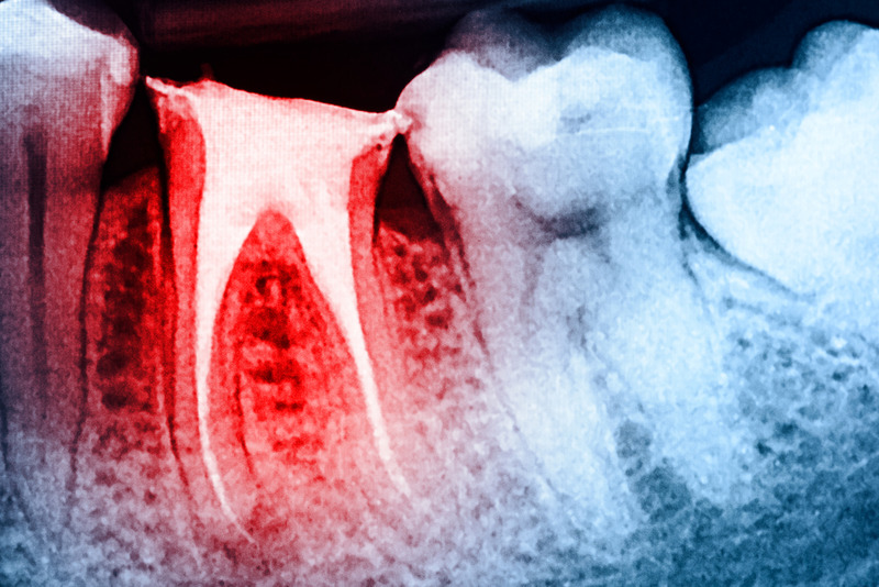 root canal treatment in Burbank